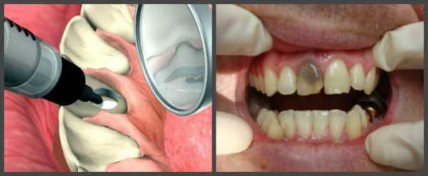 Эндоотбеливание зубов, внутрикоронковое отбеливание зуба: что это такое, препараты
