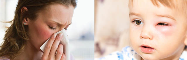 Отек Квинке: причины, симптомы, лечение, первая помощь больному