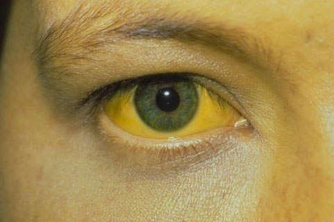 Механическая желтуха: что это такое, причины, симптомы и лечение