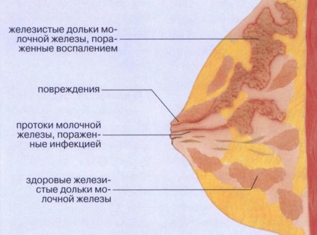 Абсцесс молочной железы: симптомы, фото, операция, лечение при грудном вскармливании
