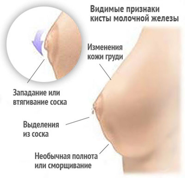 Мастопатия — симптомы и лечение, формы мастопатии, операция при мастопатии