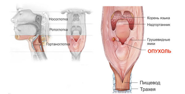 Киста гортани: причины, симптомы, диагностика, лечение, риски