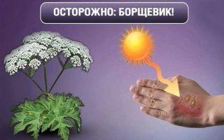 Ожоги борщевиком: симптомы, что делать, лечение в домашних условиях