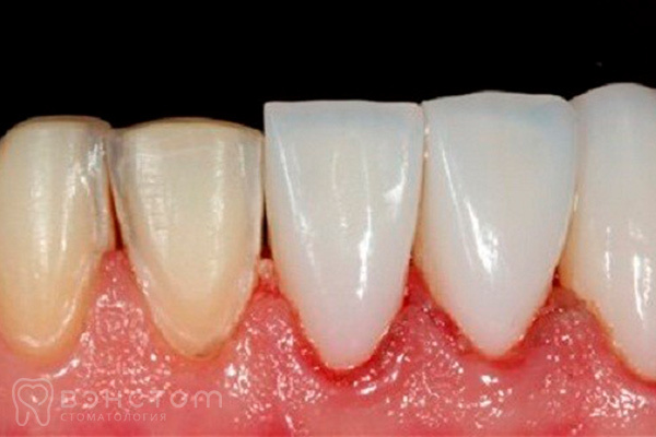 Виниры на зубы – что это, плюсы и минусы накладок на зубы