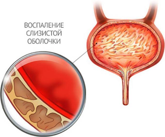 Режущие боли при мочеиспускании у мужчин и выделения из уретры: причины, диагностика, методы лечения