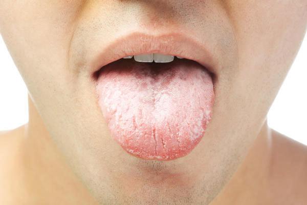Молочница у мужчин: симптомы, лечение, как проявляется молочница у мужчин