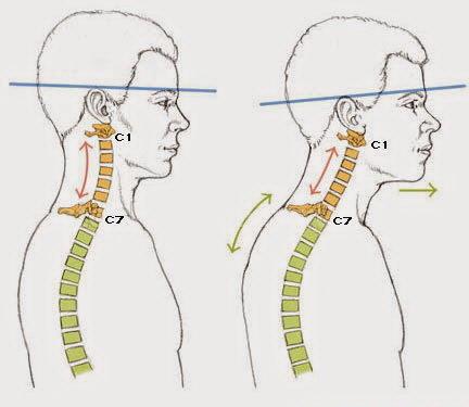 Лордоз поясничного и шейного отдела позвоночника у взрослых: симптомы, лечение, упражнения