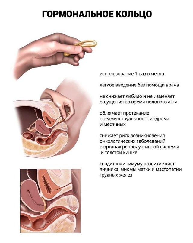 Гормональные контрацептивы пролонгированного действия: уколы, пластырь, вагинальное кольцо