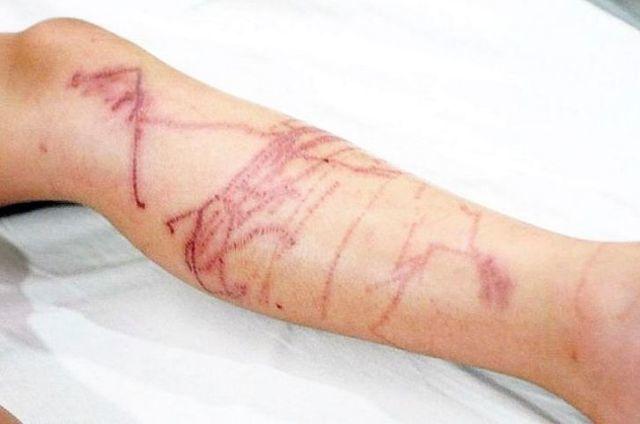 Ужалила медуза на Черном море, в Тунисе, в Таиланде: что делать, симптомы, фото