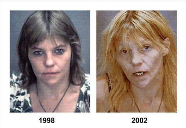 Опийная наркомания: стадии зависимости, лечение, последствия употребления опиатов