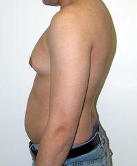 Липомастия у мужчин: как избавиться, фото, лечения, операция