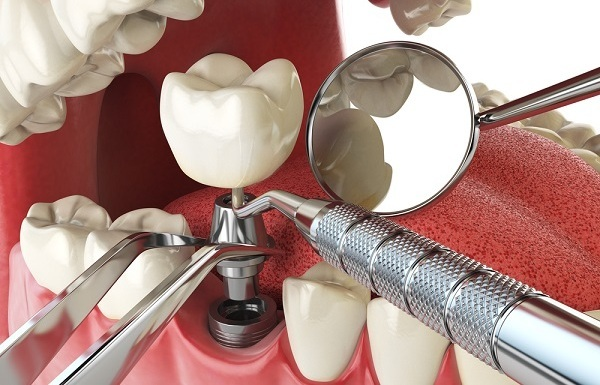 Зубные имплантаты: плюсы и минусы, показания к установке