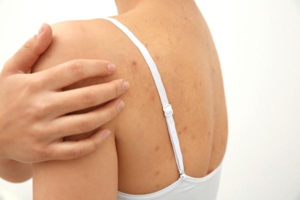 Как избавиться от прыщей и угрей на спине: причины появления, средства от прыщей на спине и плечах