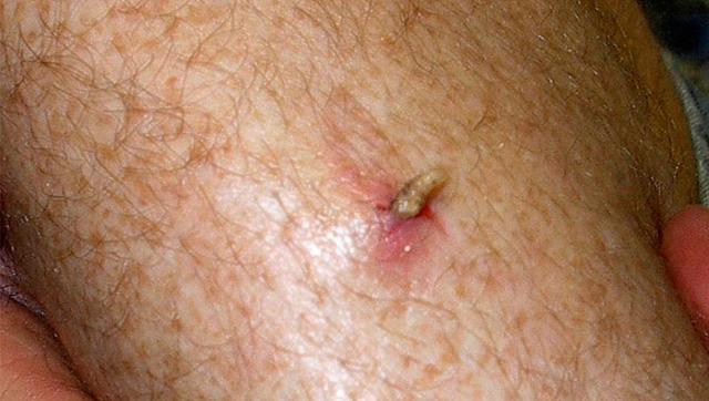 Кожный миаз у человека: симптомы, лечение, профилактика