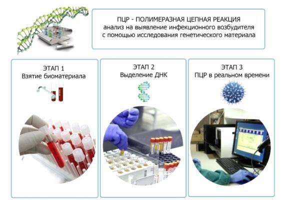 Анализ на вирус папилломы человека у женщин и мужчин: как сдавать, расшифровка