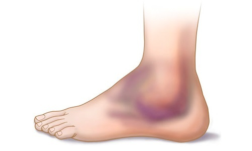 Подвывих голеностопного сустава: симптомы, лечение, рентген