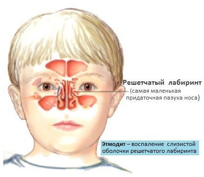 Этмоидит: что это такое, симптомы и лечение у взрослых и детей