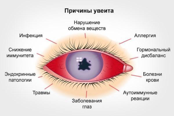 Увеит глаза: симптомы и лечение переднего, заднего увеита