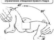 УЗИ тазобедренных суставов у детей, новорожденных, грудничков: нормы и расшифровка