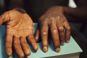 Кальциноз кожи у людей: причины, симптомы, фото, лечение