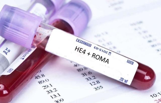 Какие анализы необходимы при подозрении на кисты и опухоли яичников?