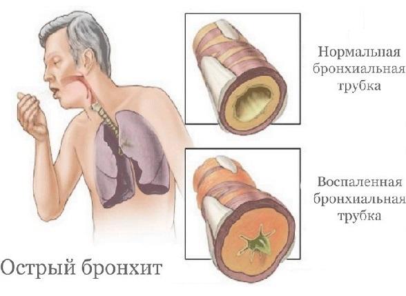 Бронхит у взрослых: симптомы, диагностика, лечение