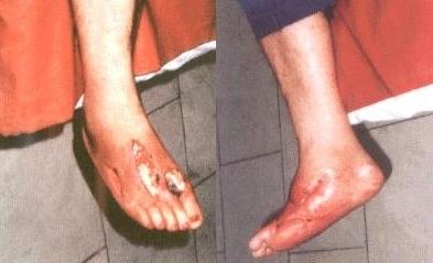 Флегмона стопы: симптомы, лечение, риски при сахарном диабете