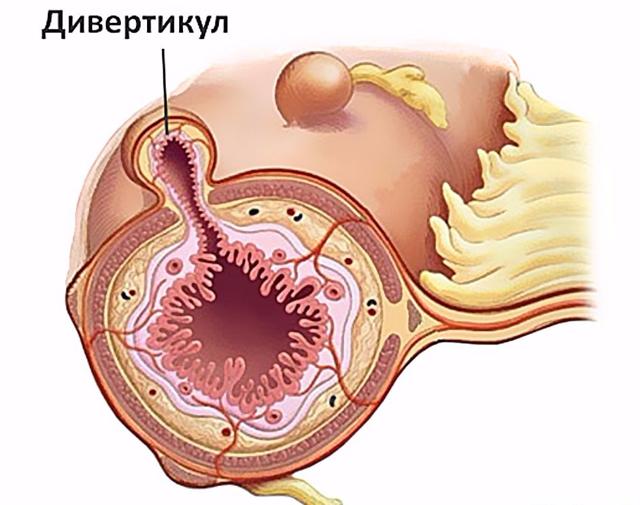 Дивертикулярная болезнь толстой кишки: симптомы и лечение, причины, диагностика и профилактика