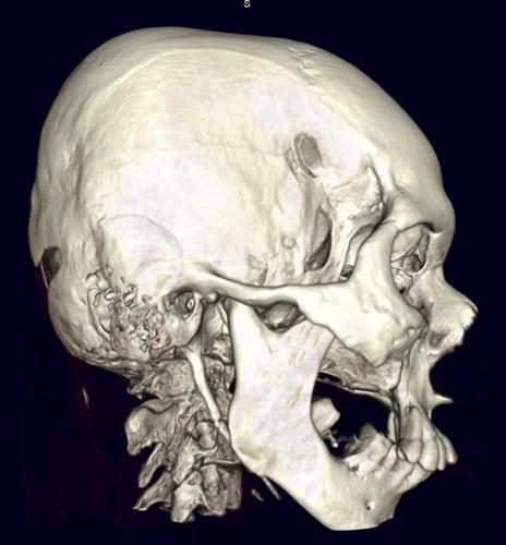 Деформирующий остеит костей или болезнь Педжета: что это, симптомы и лечение