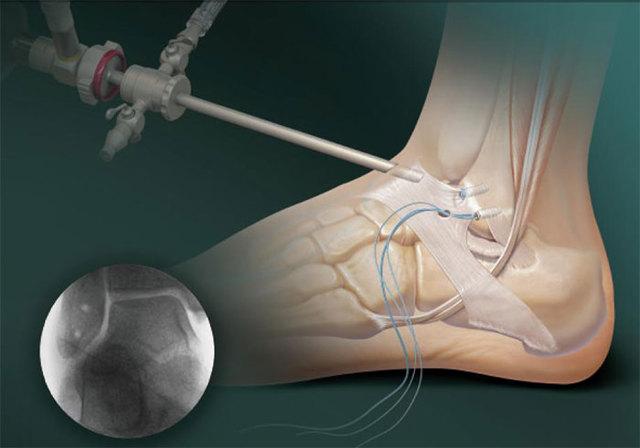 Синовит голеностопного сустава: что это такое, симптомы, лечение, риски