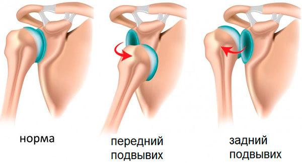 Подвывих плечевого сустава: причины, симптомы, лечение у ребенка и взрослого