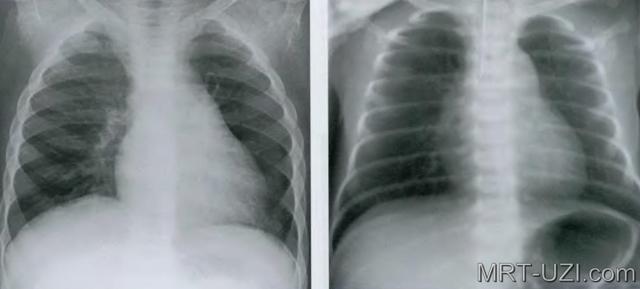 Рентген и флюорография легких – показания, правила проведения и расшифровки результатов.