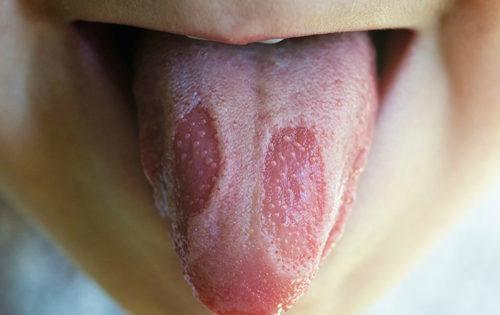 Аллергический стоматит: симптомы с фото, причины, диагностика и лечение