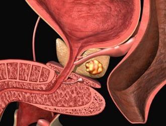 Фиброз простаты: что это такое, симптомы и лечение склероза предстательной железы