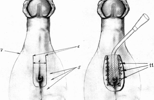 Гипоспадия: причины развития патологии классификация и методы лечения