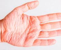Ангидроз: что это такое, причины, симптомы, лечение, профилактика