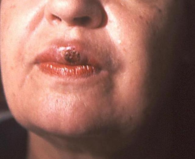 Первичный сифилис: симптомы, диагностика первичного периода сифилиса и лечение